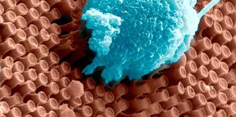 nanotech-retina-1-uc-san-diego